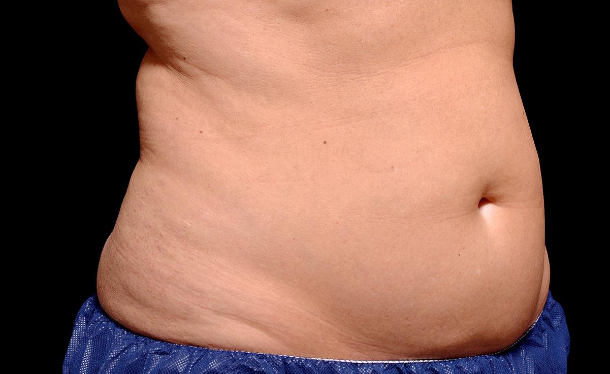 female-abdomen-before.jpg