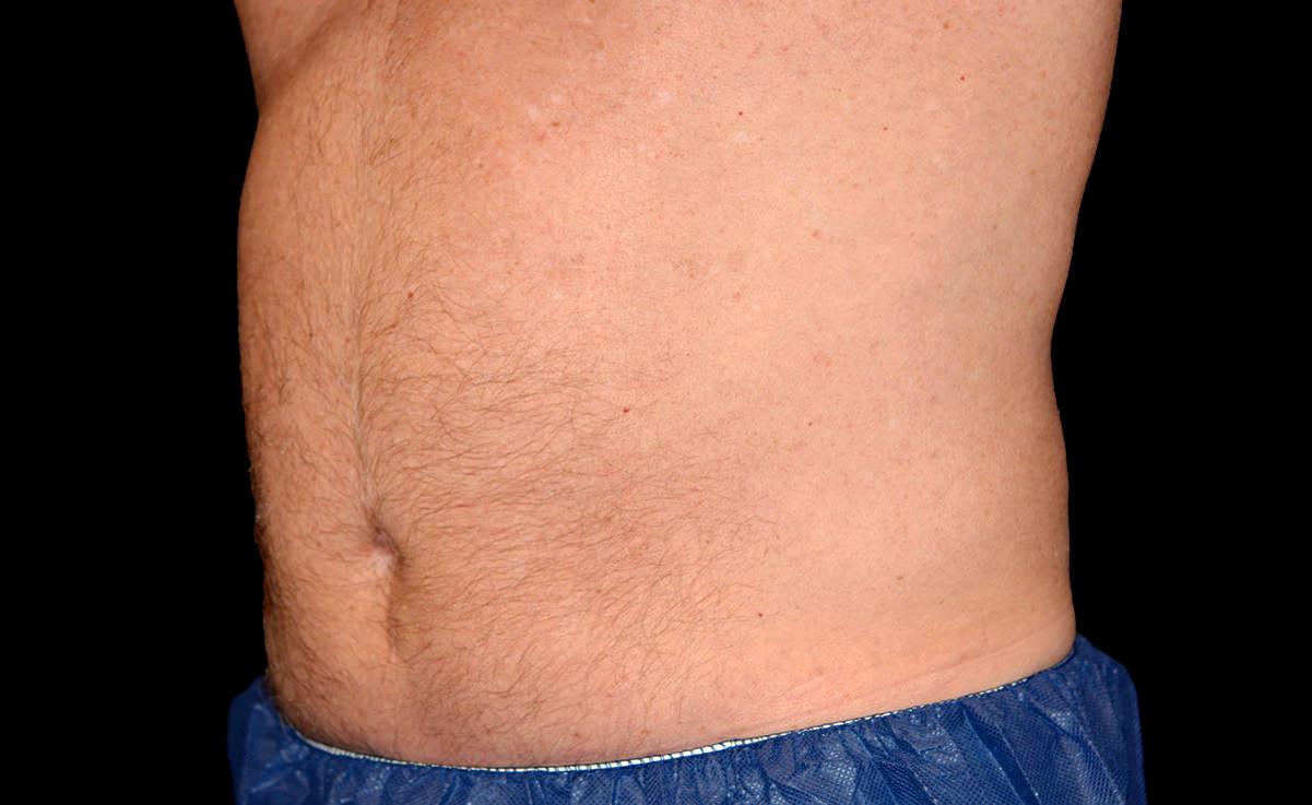 male-abdomen-after.jpg