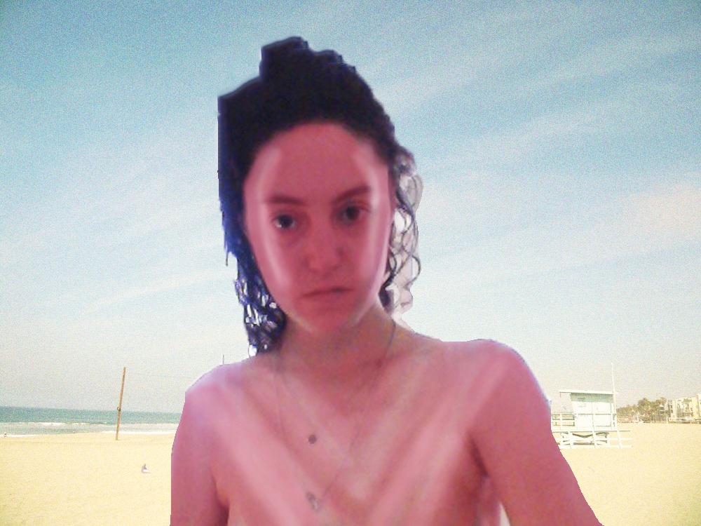 Strange Sunburn