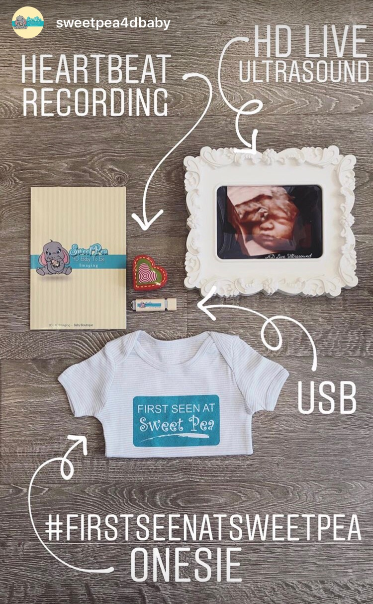 sweet pea 4D imaging keepsakes - a shirt, usb thumbdrive, framed ultrasound and onsie