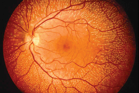 This is an image of a retina.