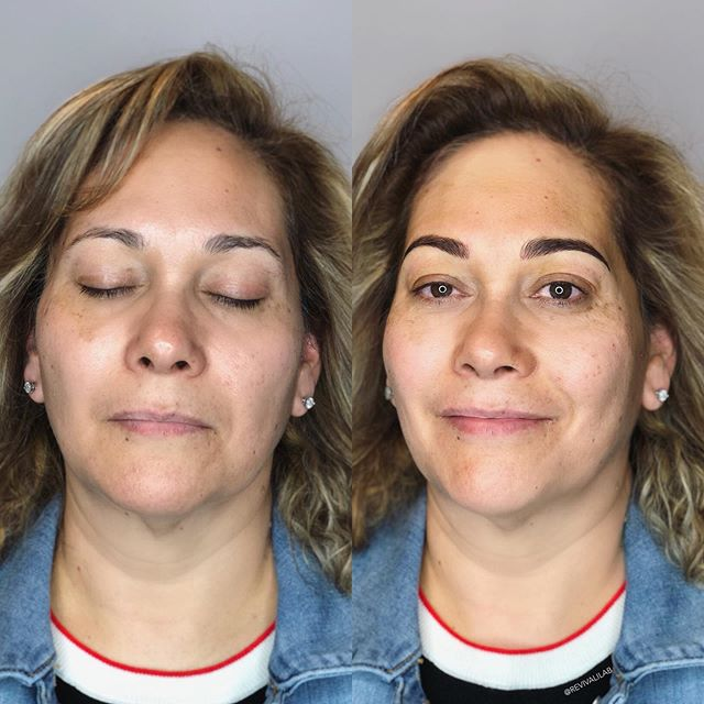 Incomplete to complete! Reshaped, rebalanced, and added density to these new summer brows! #browreformation