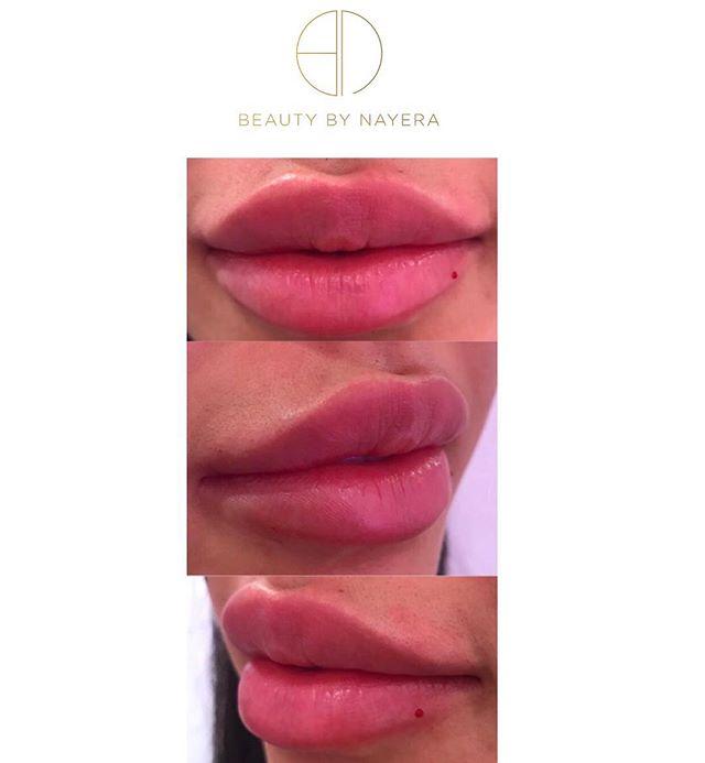 P O U T Y 👄 _  #aesthetic #aesthetics #beauty #beautybynayera #cupidsbow #dressyourface #face #hudabeauty #injections #juvederm #kkw #kimkardashian #kyliejenner #kyliecosmetics #cosmetics #mua #makeup #fillers #lipaug #lipaugmentation #mua #makeup #plasticsurgery #anastasiabeverlyhills #nyx #nyxcosmetics