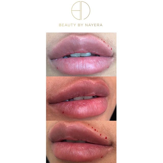 ———  swipe to see a video of these gorgeous lips! 📽 #aesthetic #aesthetics #beauty #beautyguru #cupidsbow #dressyourface #face #hudabeauty #injections #injectables #juvederm #kkwbeauty #kyliejenner #kyliecosmetics #kyliejennerlipkit #lipaug #lipaugmentation #lipinjections #losangeles #mua #makeup #pout #plasticsurgery #philly