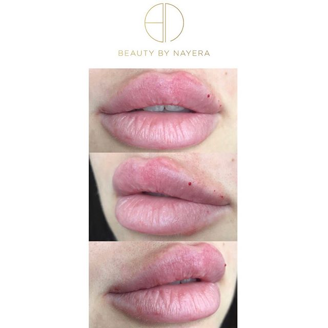 ———  SWIPE TO SEE A VIDEO OF THIS BEAUTY! 🔥🔥🔥 #aesthetic #aesthetics #anastasiabeverlyhills #beauty #beautyguru #dressyourface #face #hudabeauty #injections #injectables #juvederm #kkwbeauty #kyliejenner #kyliecosmetics #kyliejennerlipkit #kkw #lipaug #lipinjections #lipaugmentation #losangeles #mua #makeup #pout #philly #plasticsurgery