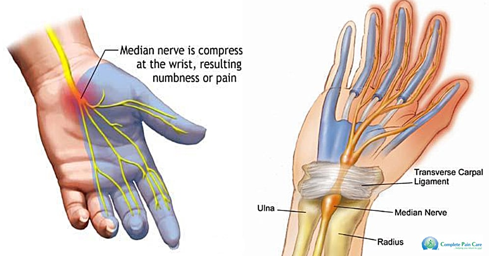 Image credit: https://www.completepaincare.com/patient-education/conditions-treated/carpal-tunnel-syndrome-cts/