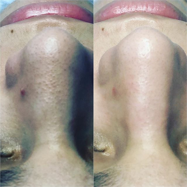 And we call this @hydrafacial magic! Extractions never felt SO good! 🥰  Have you have the #hydrafacialexperiance yet?  Book your appointment today. Link in Bio. 💆🏻‍♀️