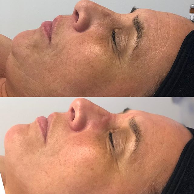 Top Pic Before @hydrafacial Bottom Pic Immediately After #Hydrafacial using @alastinskincare #trihextechnology Booster! 🙌🏽💯 Her skin is vibrant, the texture looks smoother all around and her skin is hydrated!