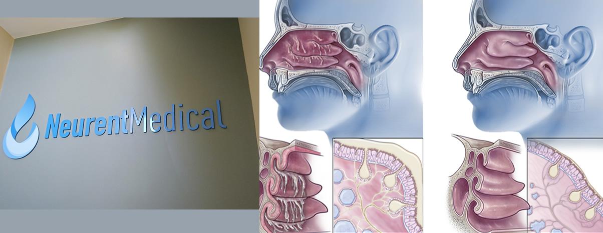 Neurant Medical