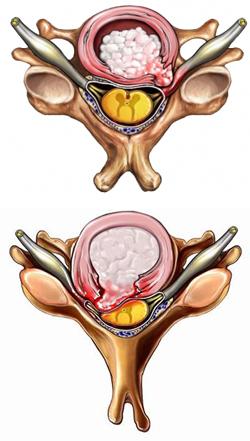 Hérnia de Disco Cervical