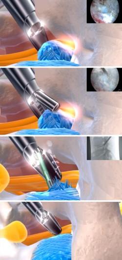 Cirurgia da Hérnia de Disco Lombar por vídeo