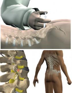 Procedimentos para tratamento de Dor Crônica