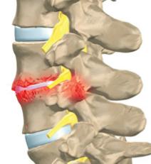 Tratamento da Discopatia e Artrose Facetária