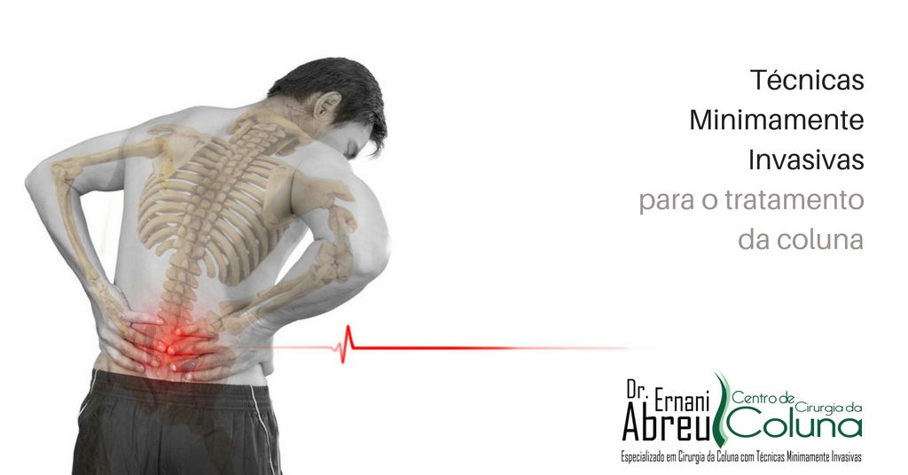 Técnicas Minimamente Invasivas - Dr. Ernani Abreu - Centro de Cirurgia da Coluna