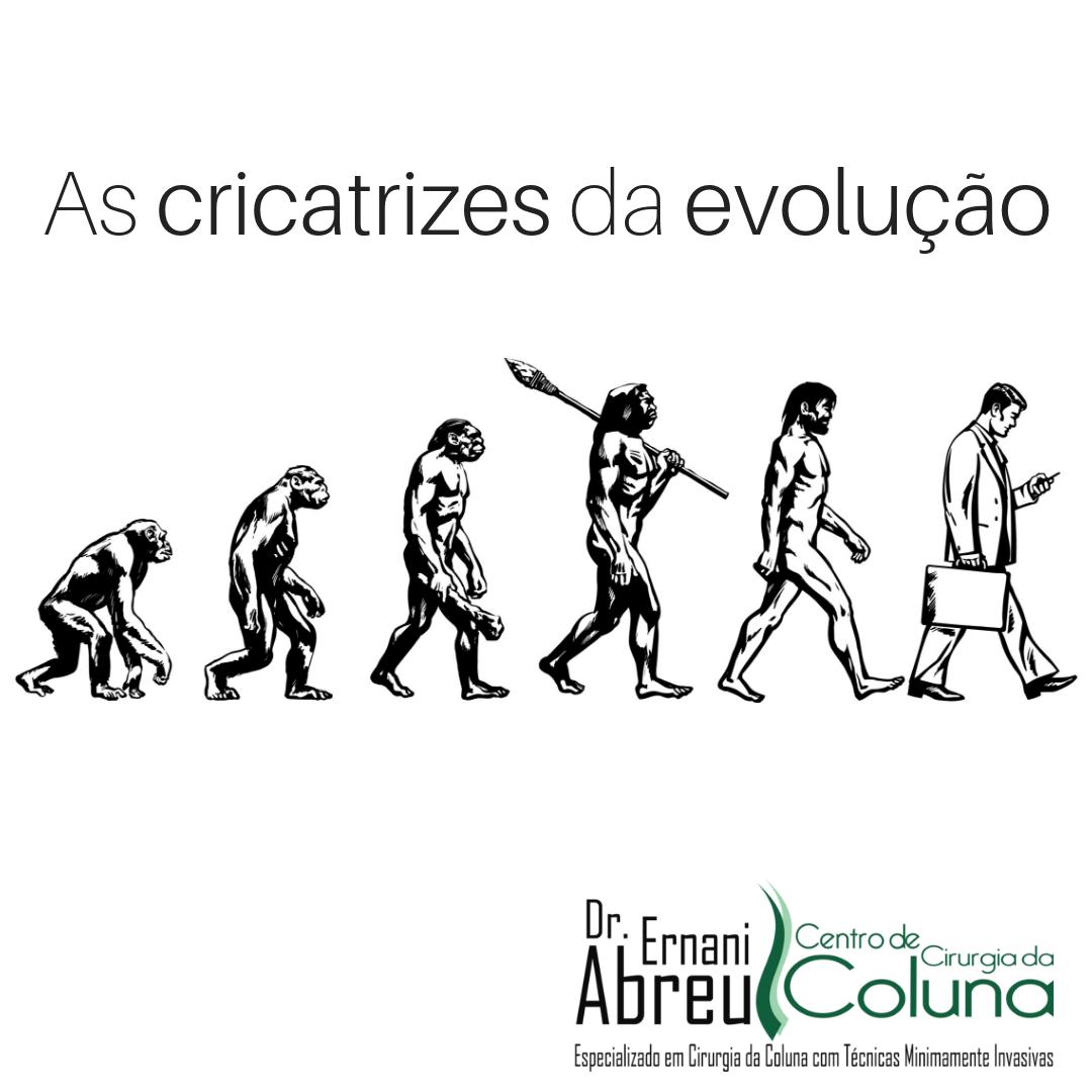 As cicatrizes da evolução - Dr. Ernani Abreu - Ernani Abreu - Centro de Cirurgia da Coluna - Centro Clínico Mãe de Deus - Porto Alegre - Rio Grande do Sul.png