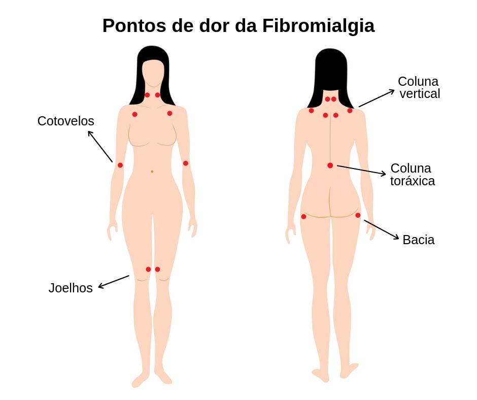 Pontos de dor da Fibromialgia