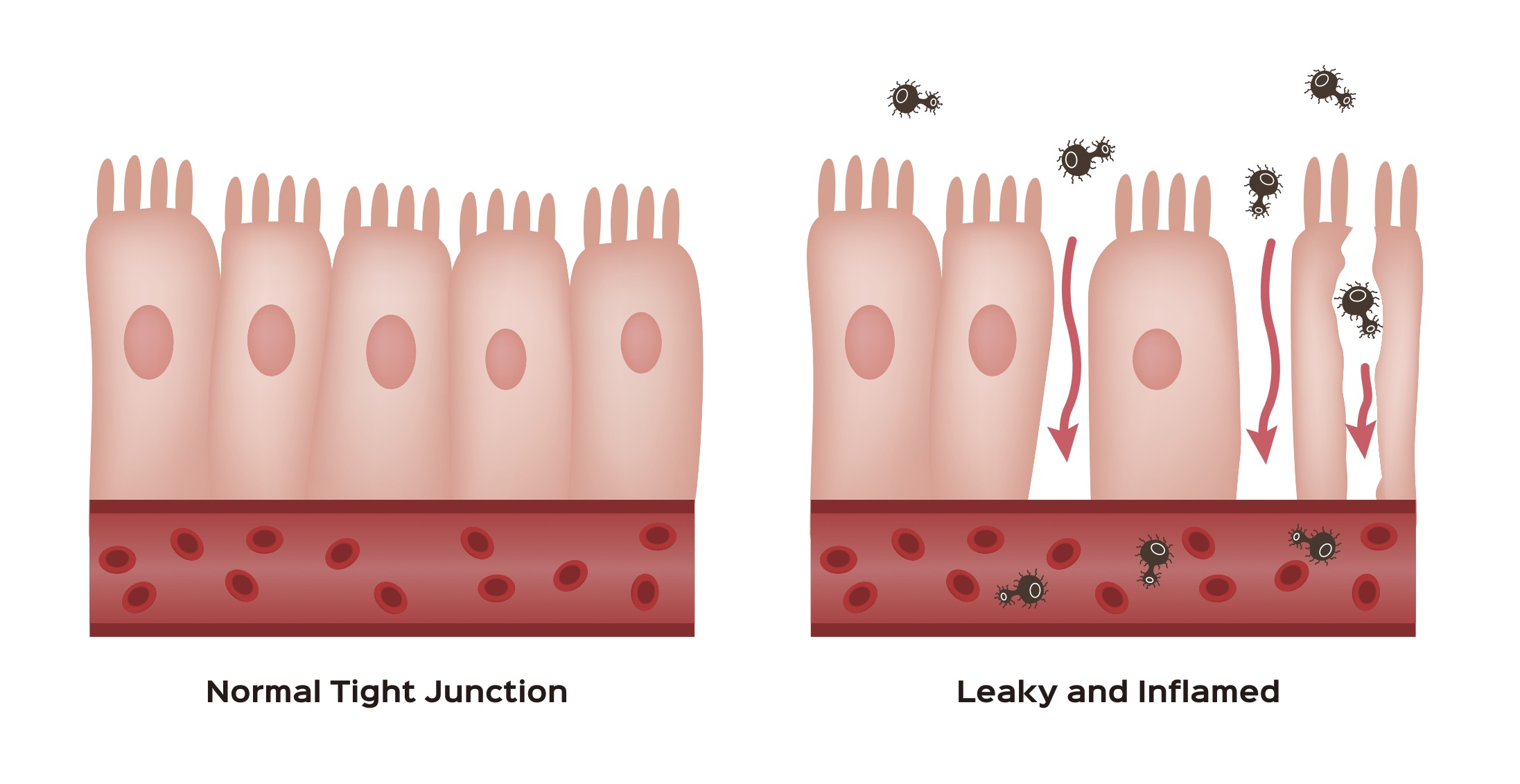 epithelial lining picture.jpg
