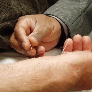 Acupuncturer.jpg