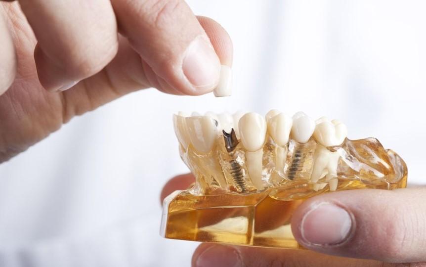 Dental Implants -