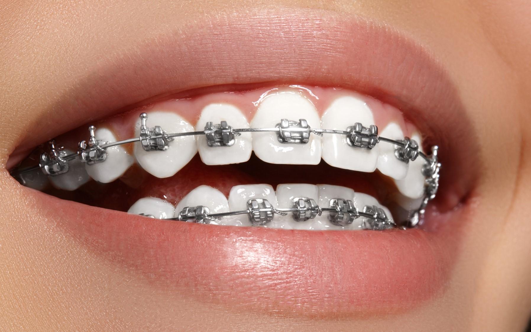 Orthodontics -