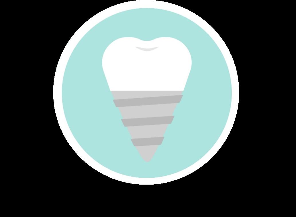 dental implantz.jpg