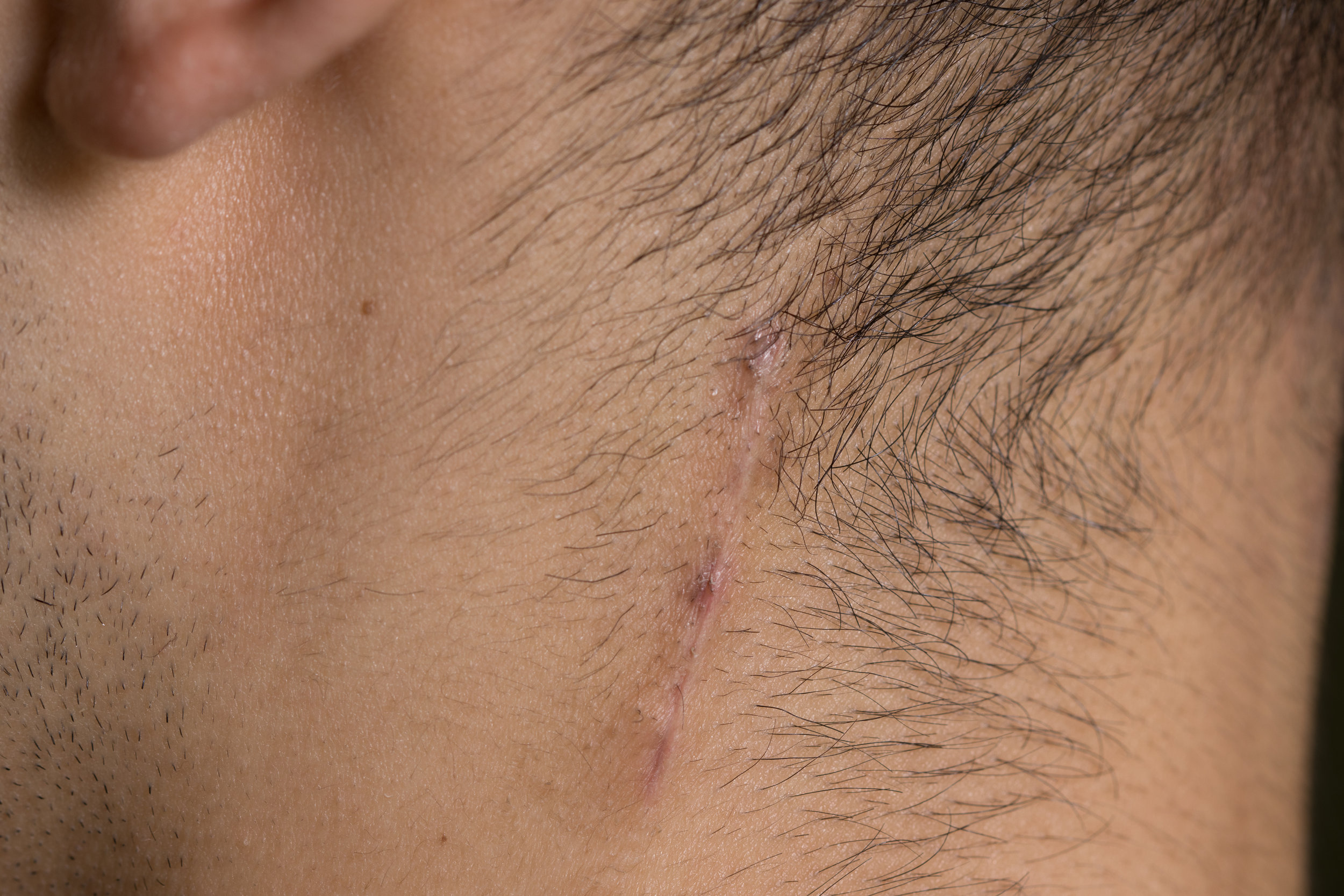Incision for left lesser occipital nerve, 24 days post-op