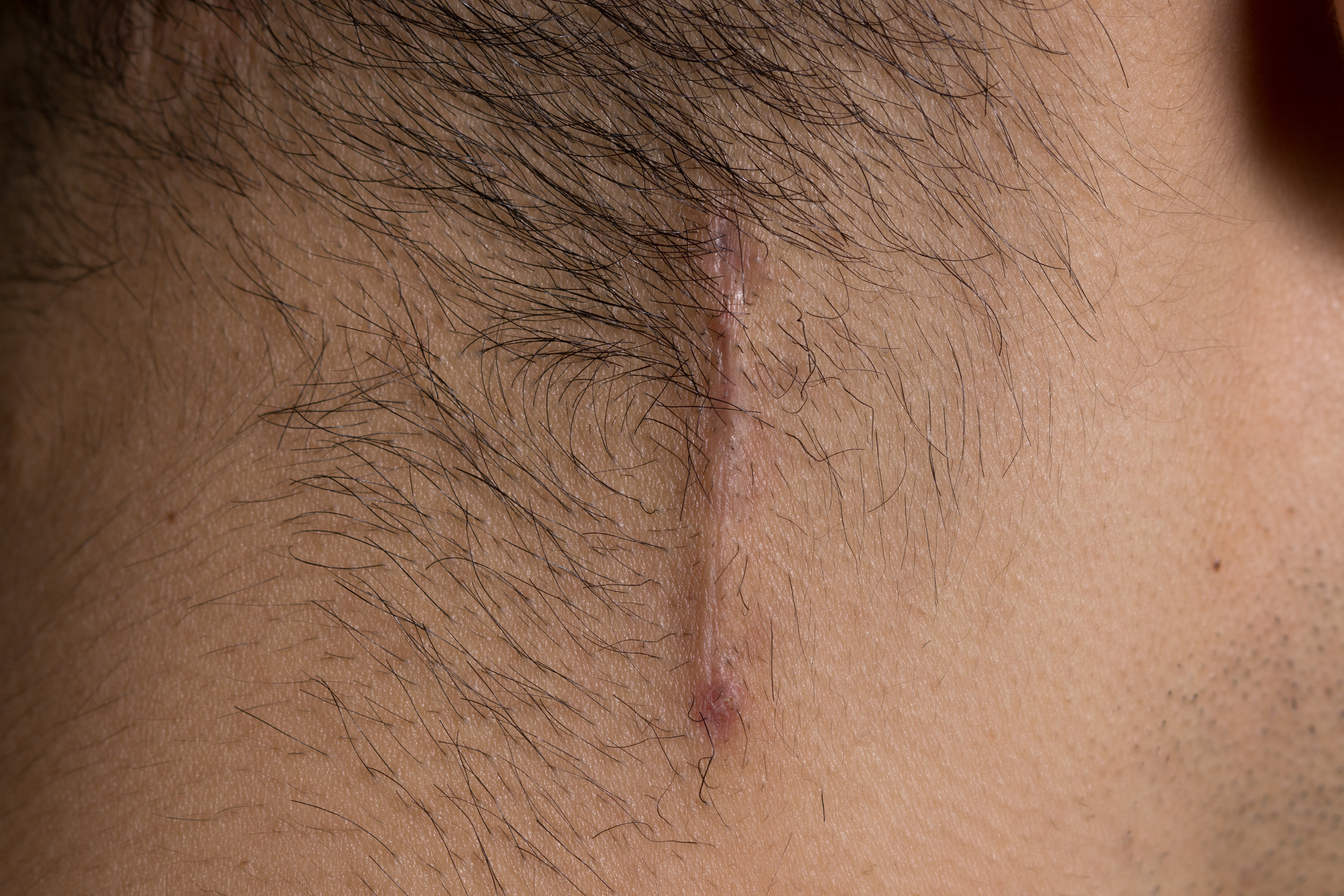 Incision for right lesser occipital nerve, 24 days post-op