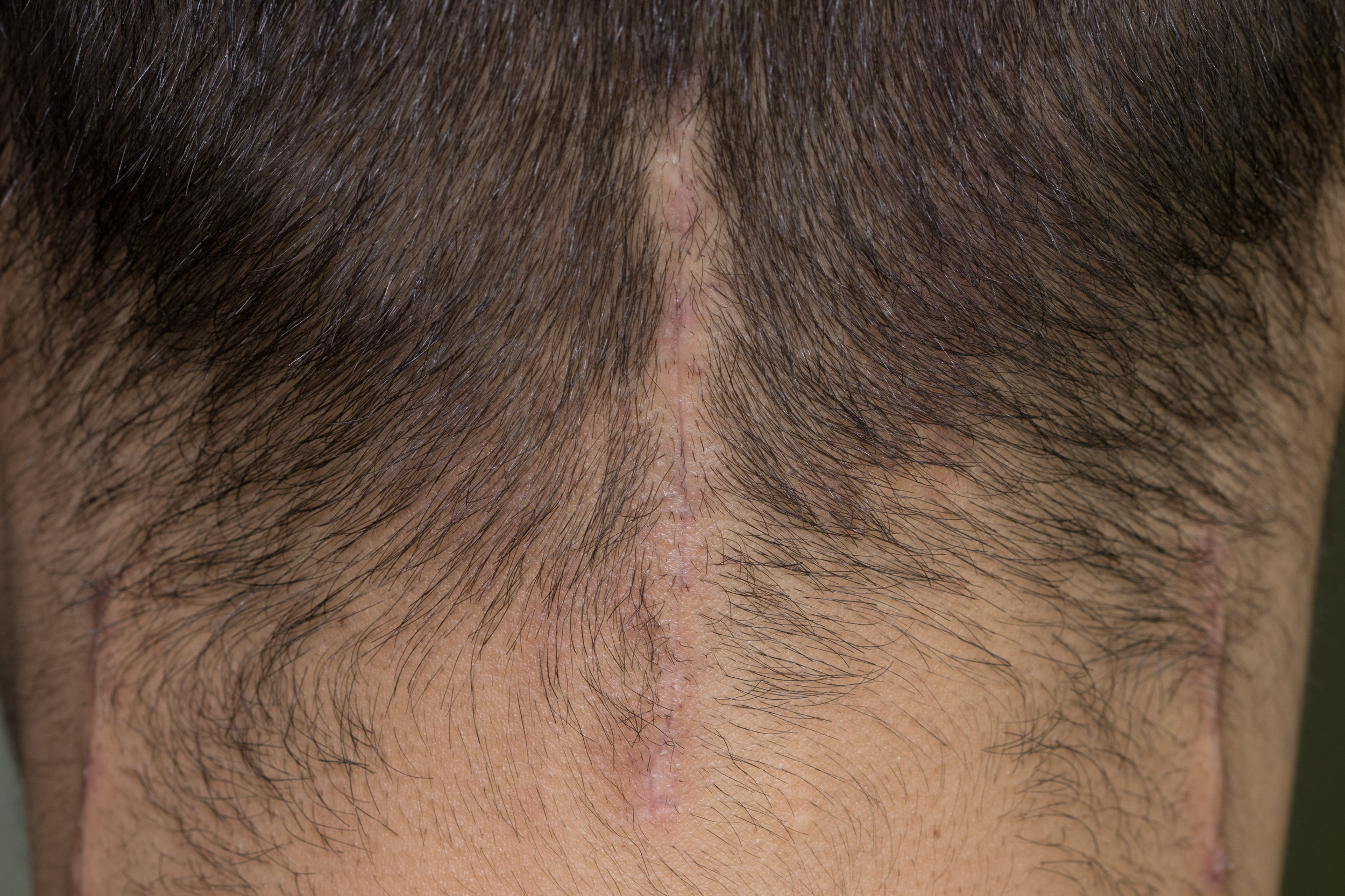 Incision for greater and third occipital nerves, 24 days post-op