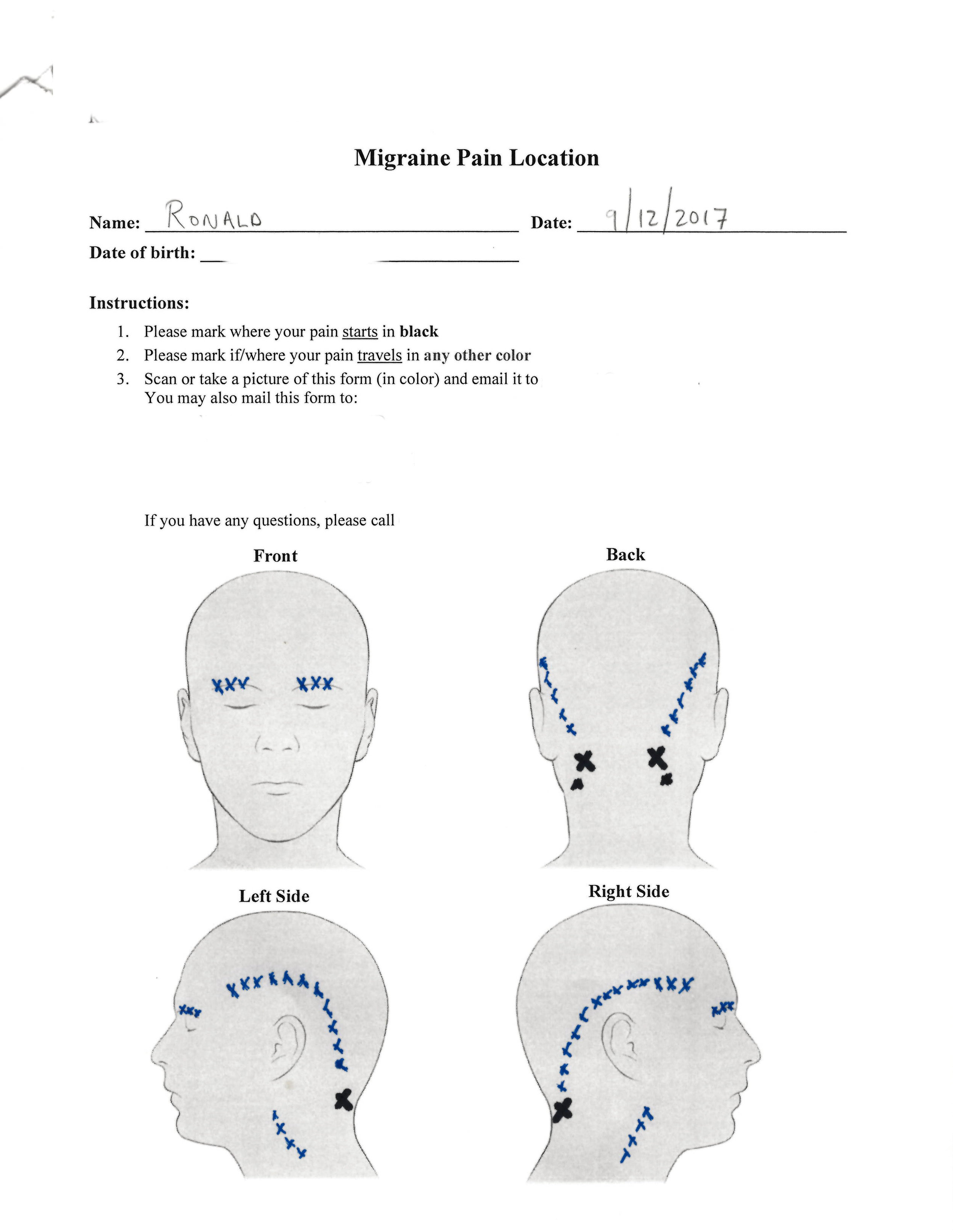 I submitted this form as part of migraine surgery pre-screening.
