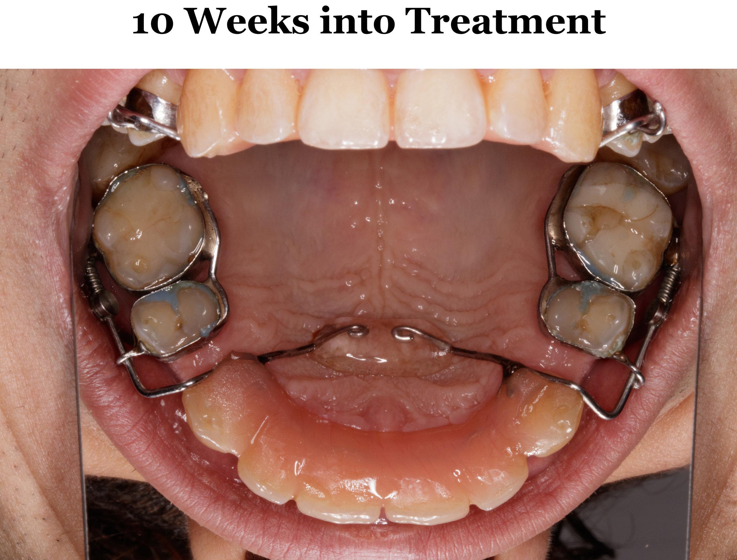10 Weeks Upper.jpg