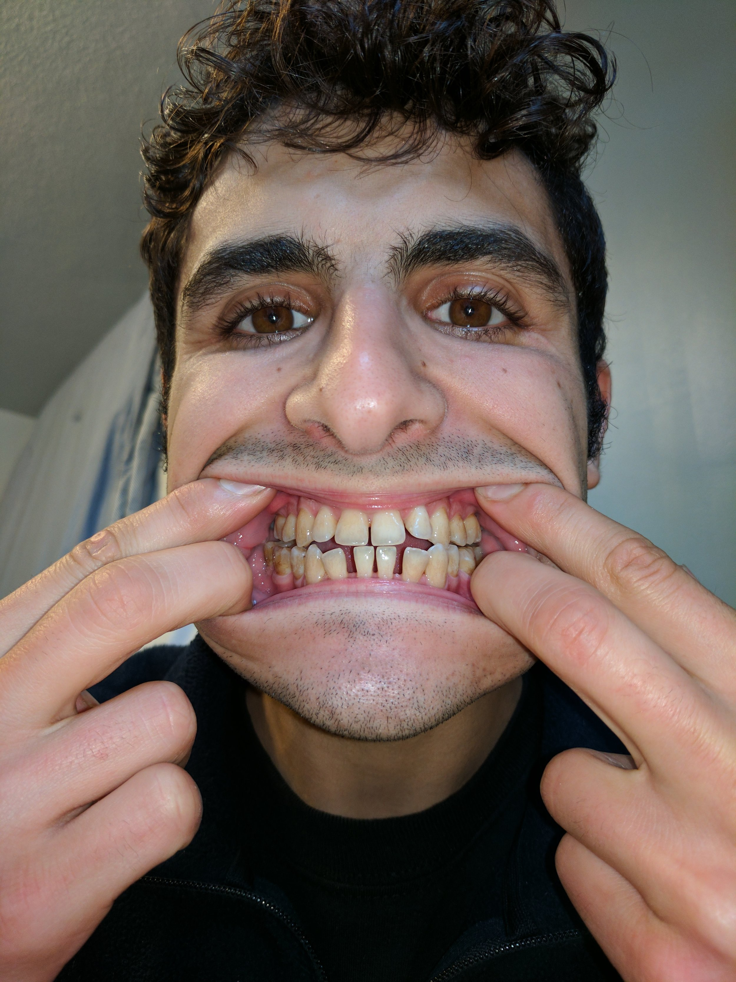 Front teeth flaring in sockets.