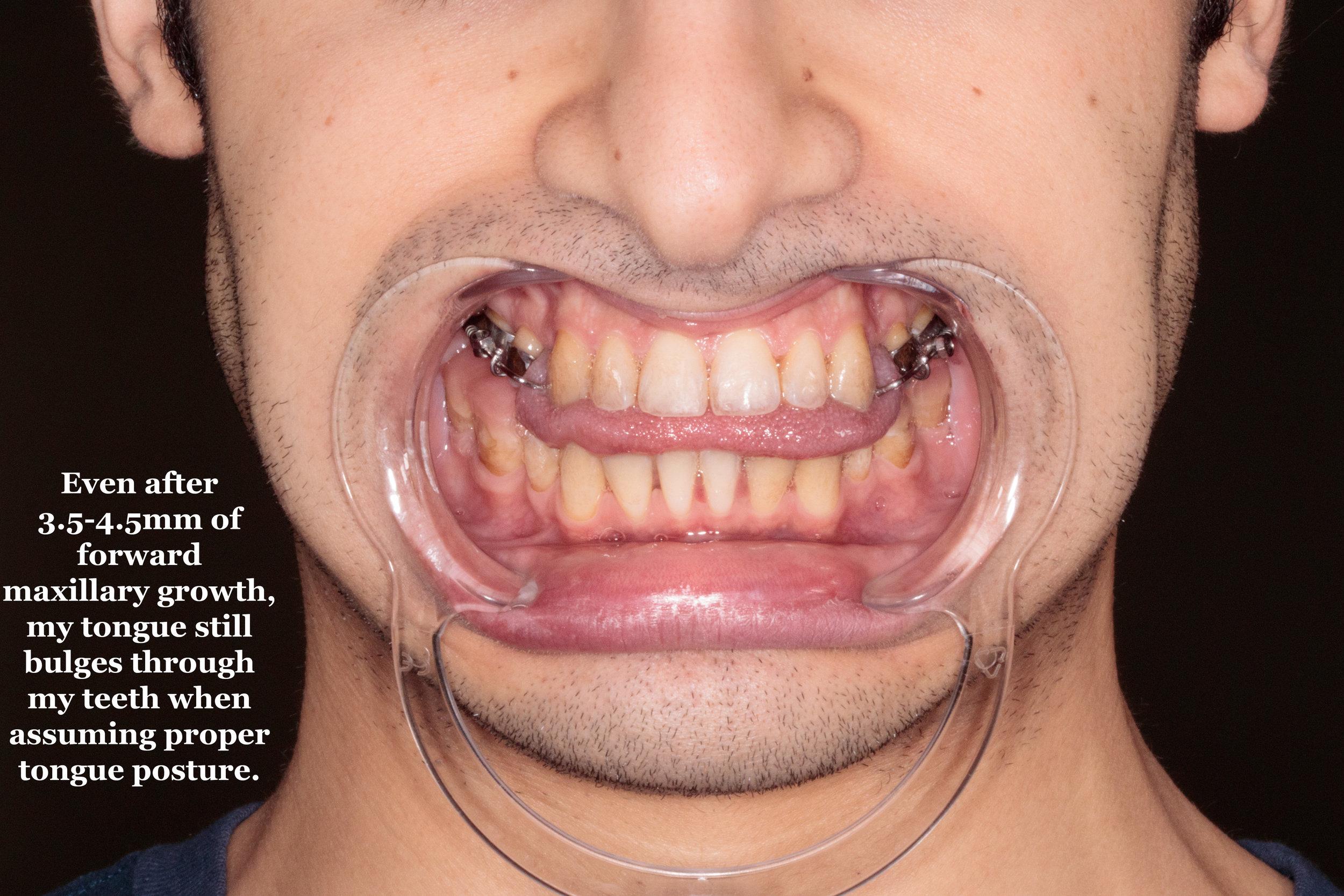 Proper Tongue Posture
