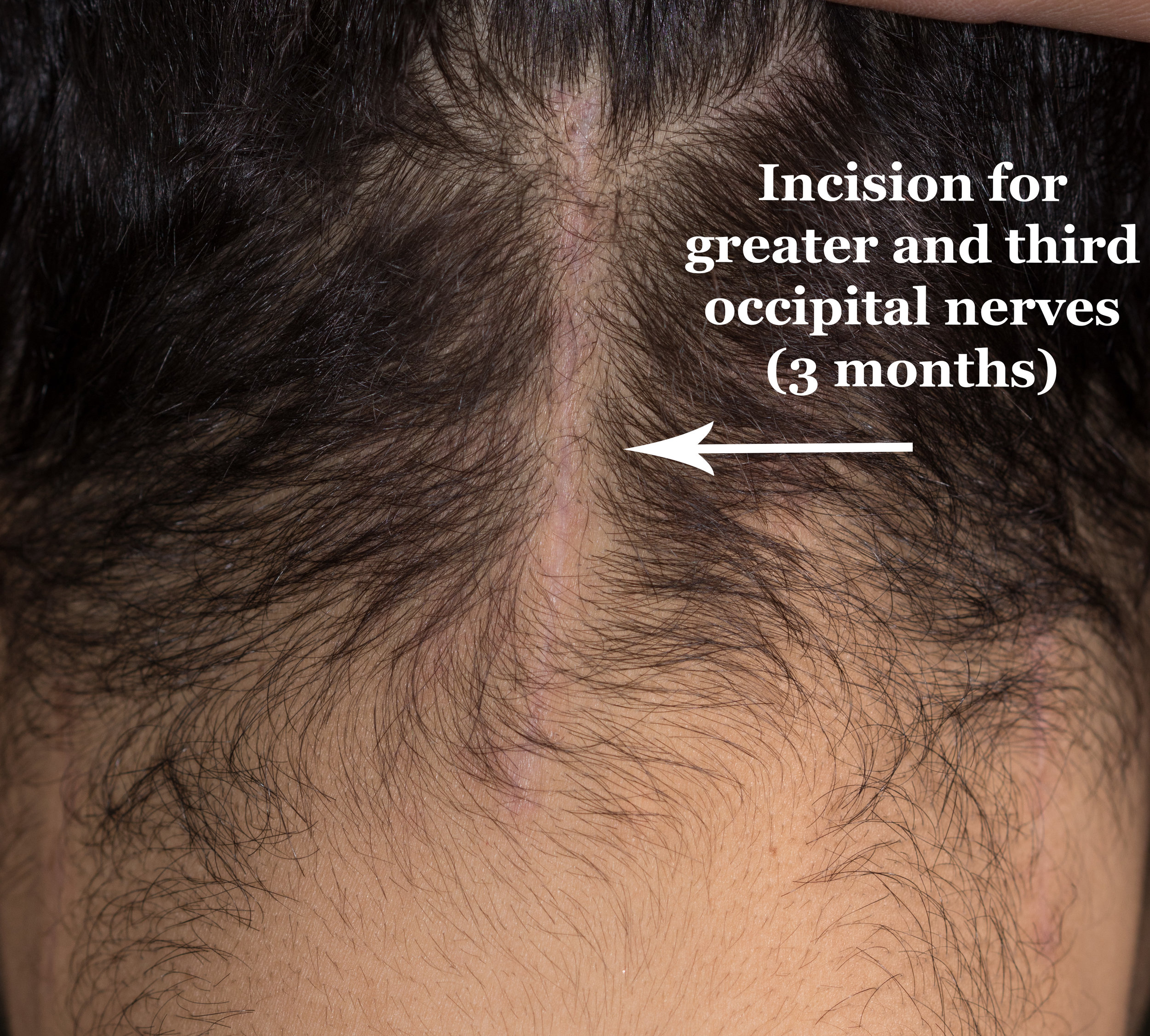 Center Incision 3 months zoomed.jpg