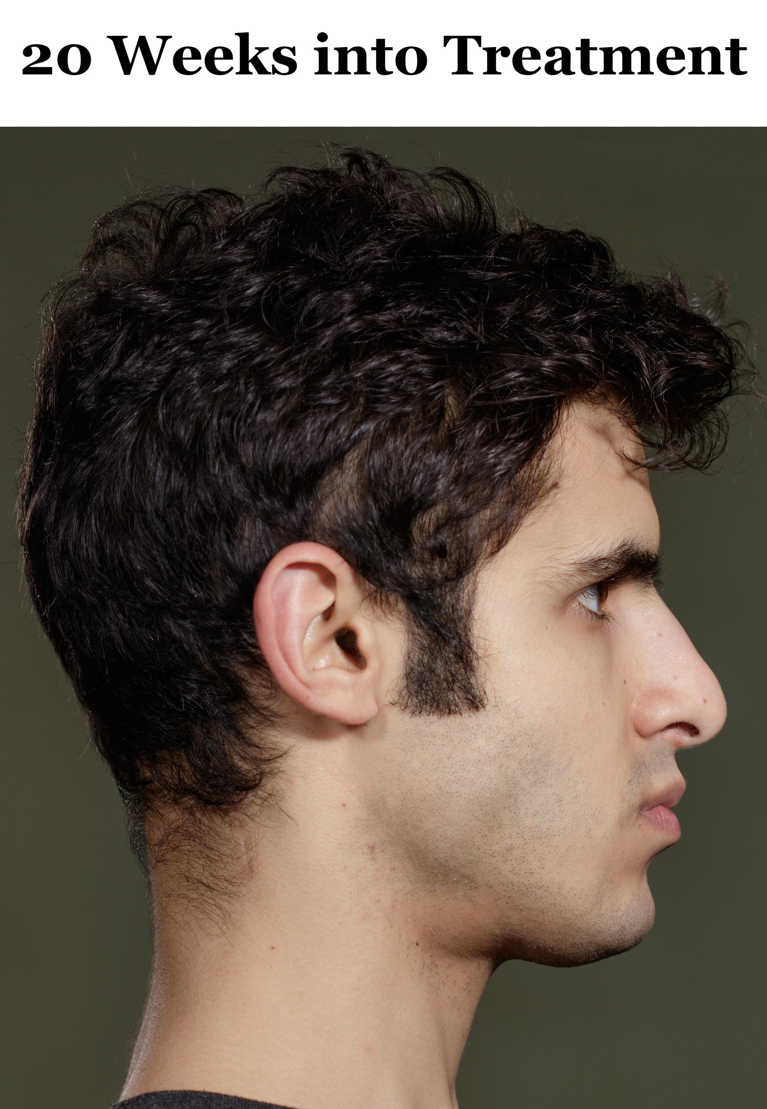 20 Weeks Side Profile.jpg