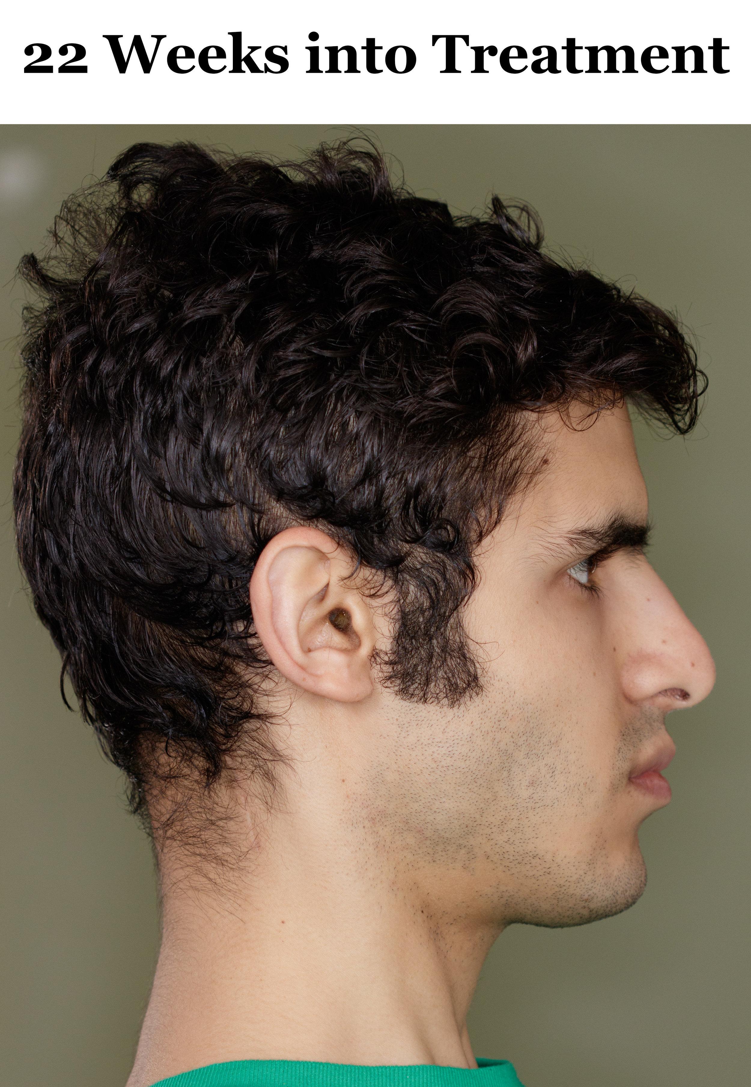 22 Weeks Side Profile.jpg