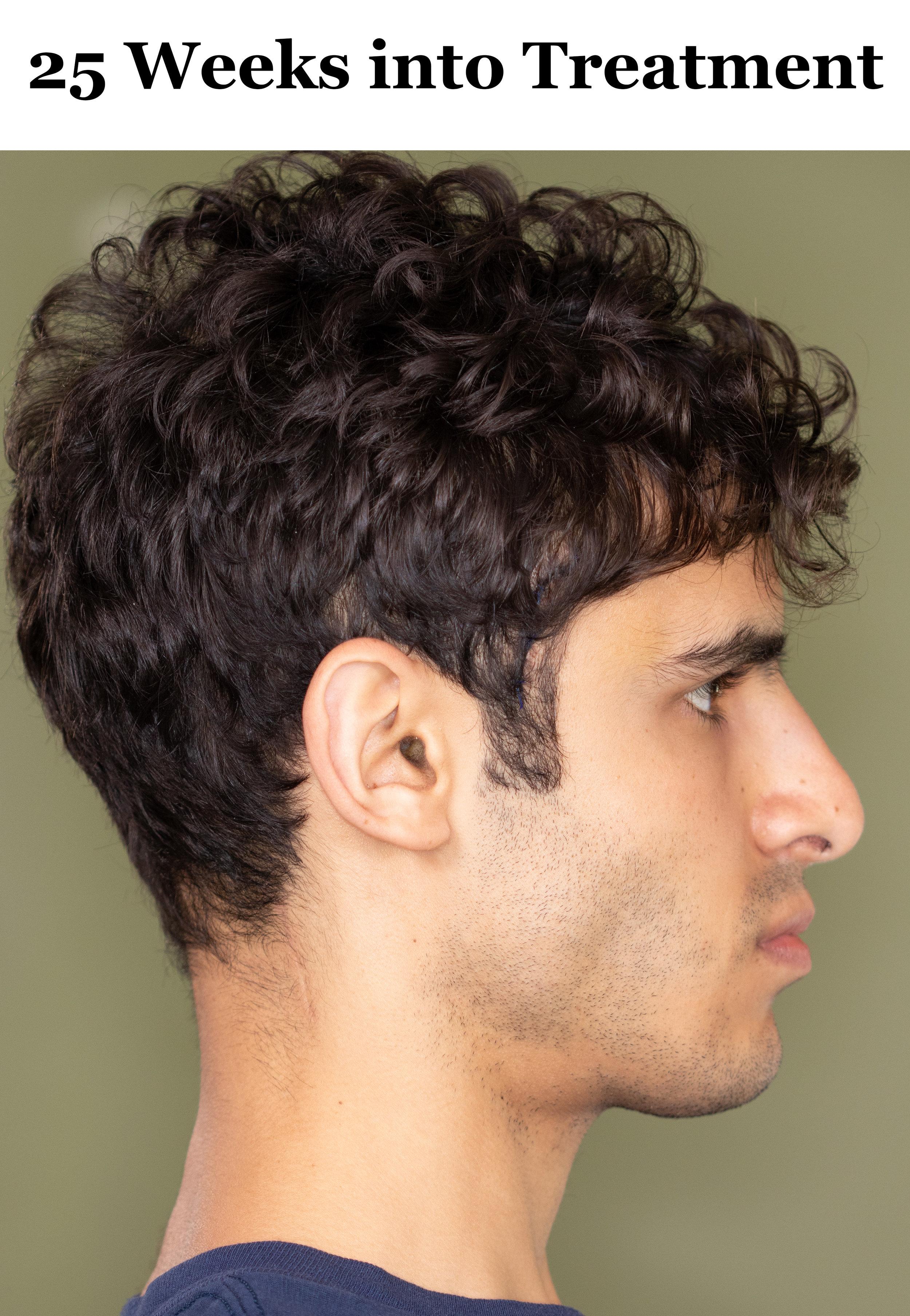 25 Weeks Side Profile.jpg