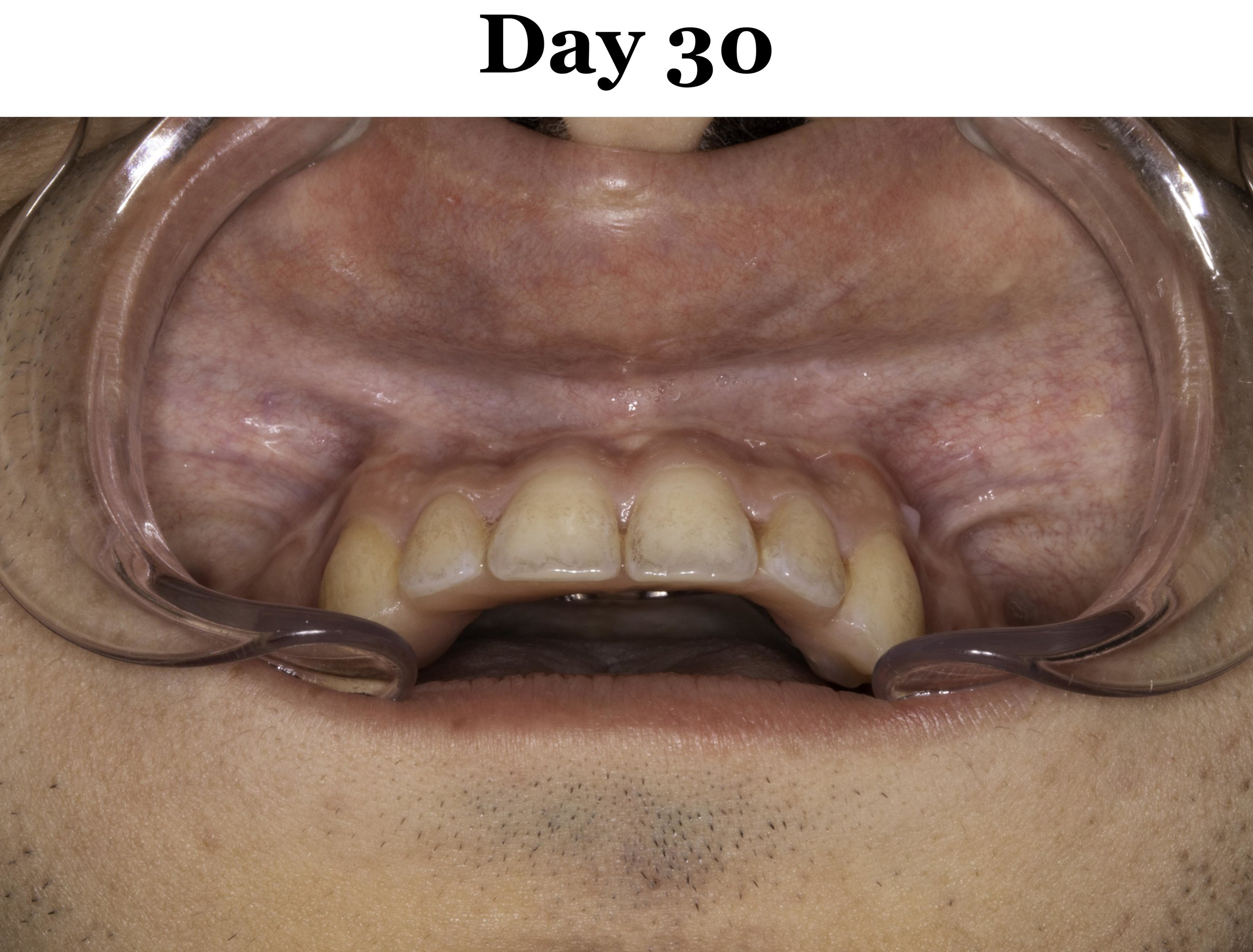 Lip Tie Release Day 30_Upper.jpg