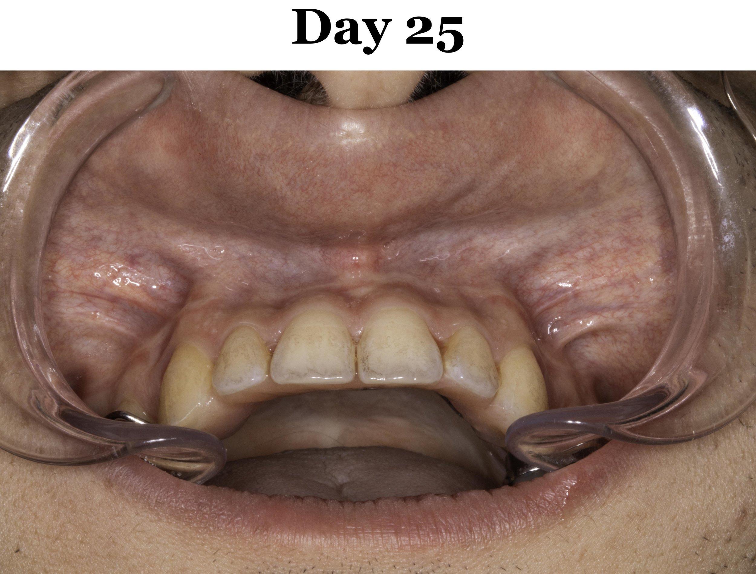 Lip Tie Release Day 25_Upper.jpg
