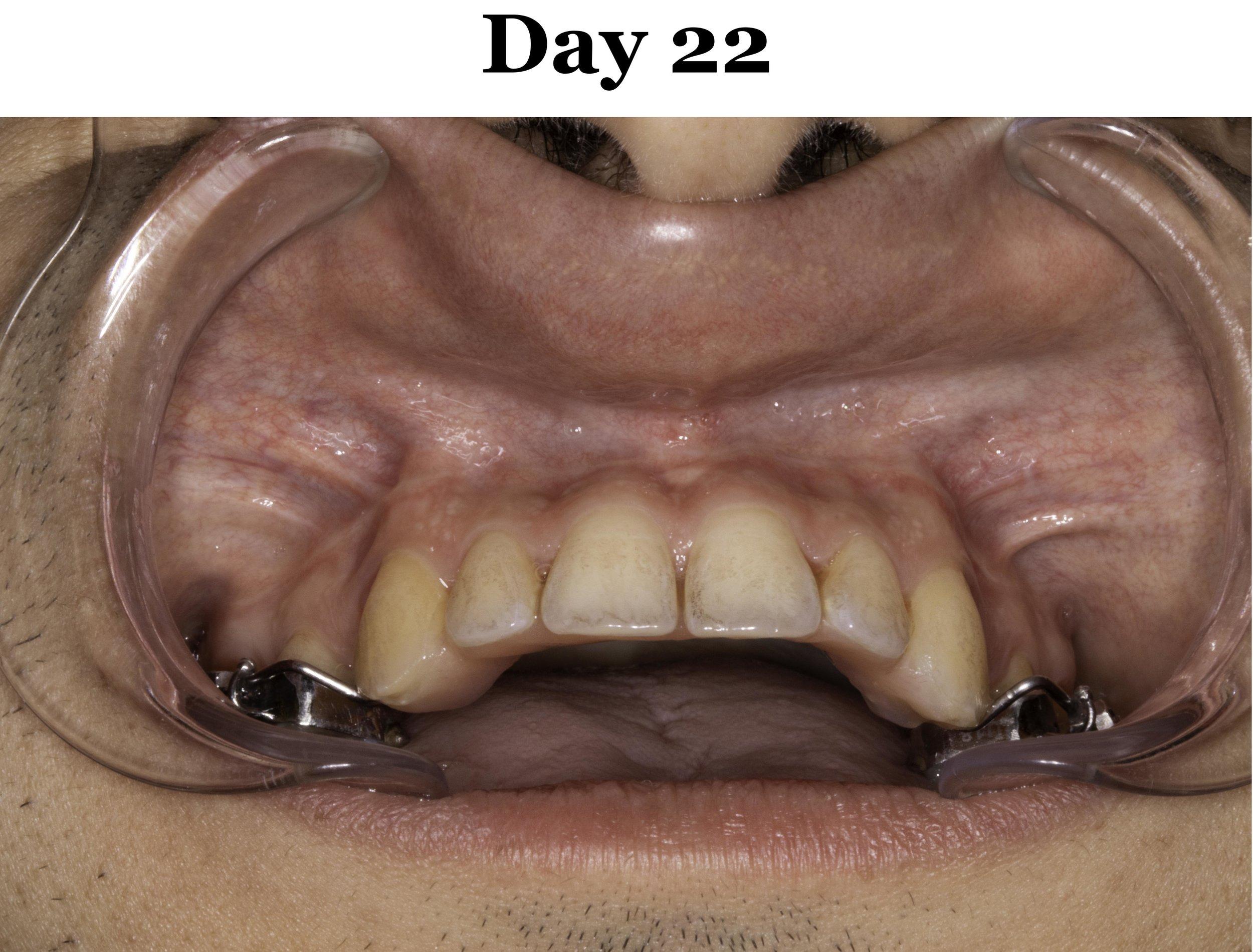 Lip Tie Release Day 22_Upper.jpg