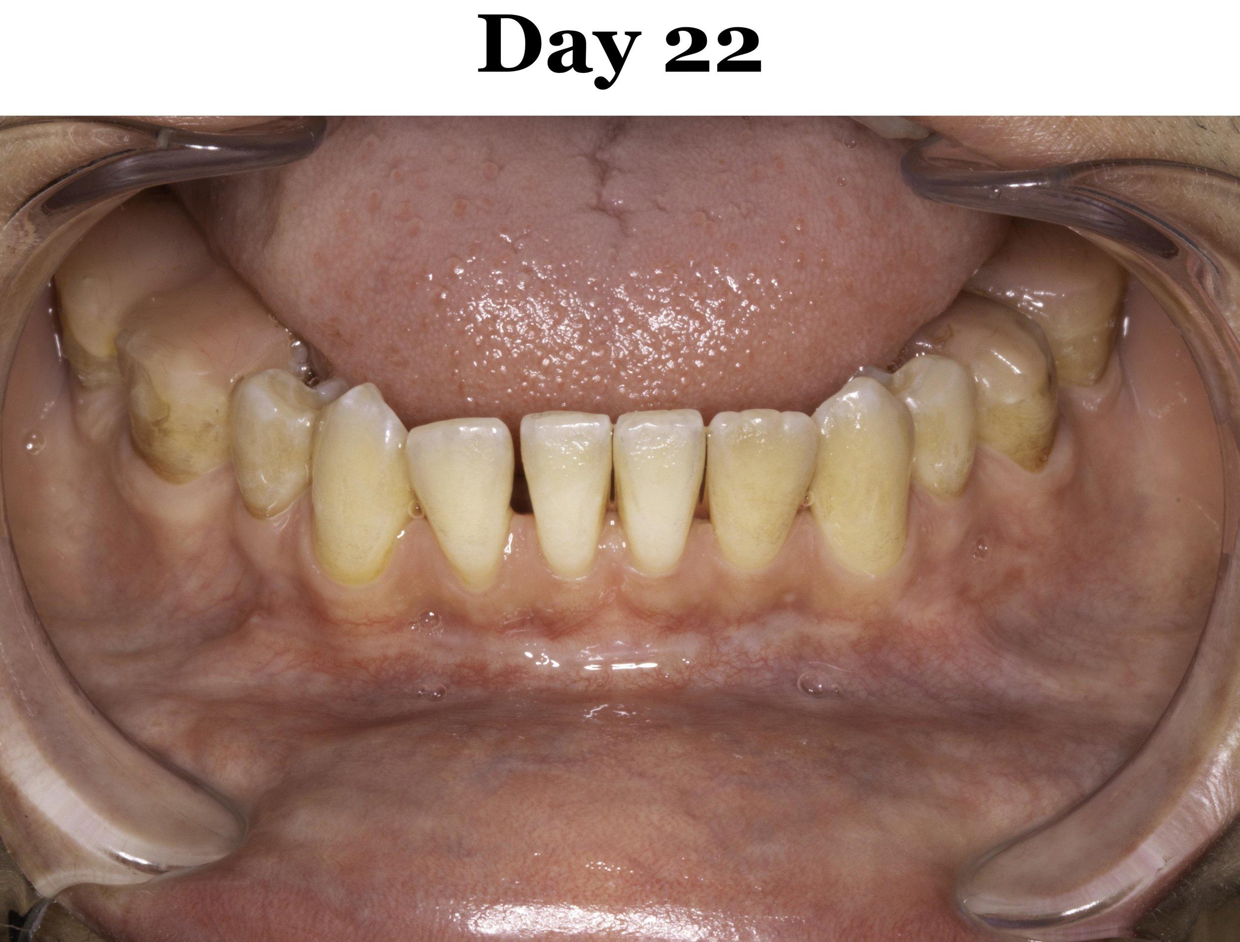 Lip Tie Release Day 22_Lower.jpg