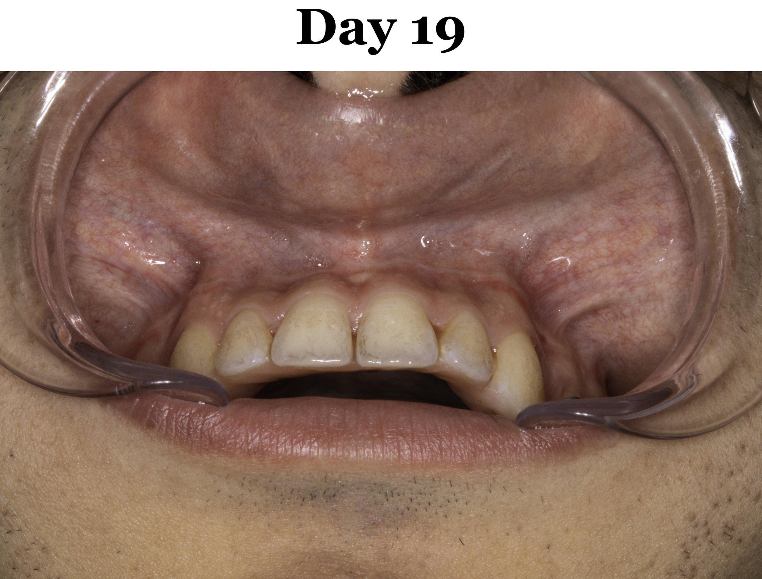 Lip Tie Release Day 19_Upper.jpg
