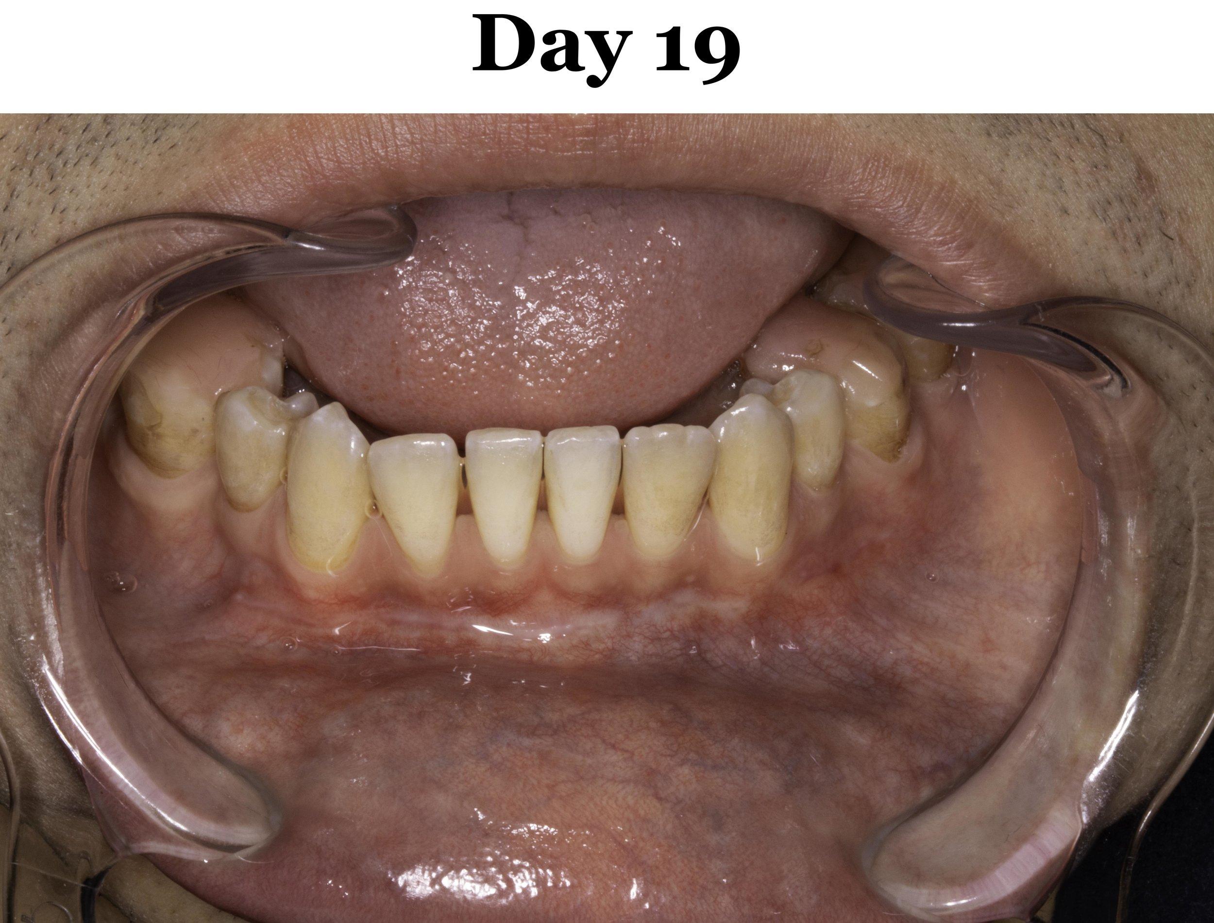 Lip Tie Release Day 19_Lower.jpg