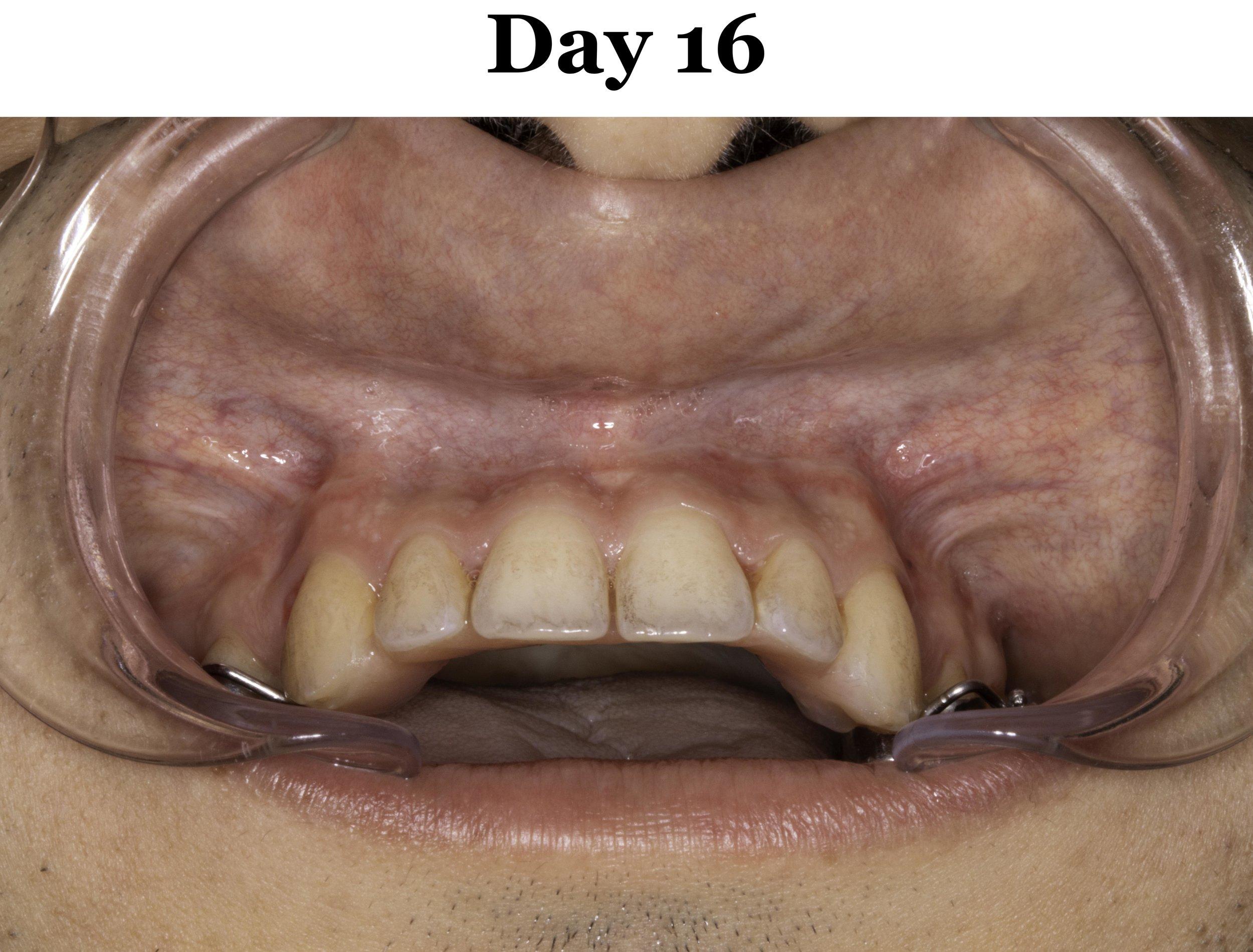 Lip Tie Release Day 16_Upper.jpg