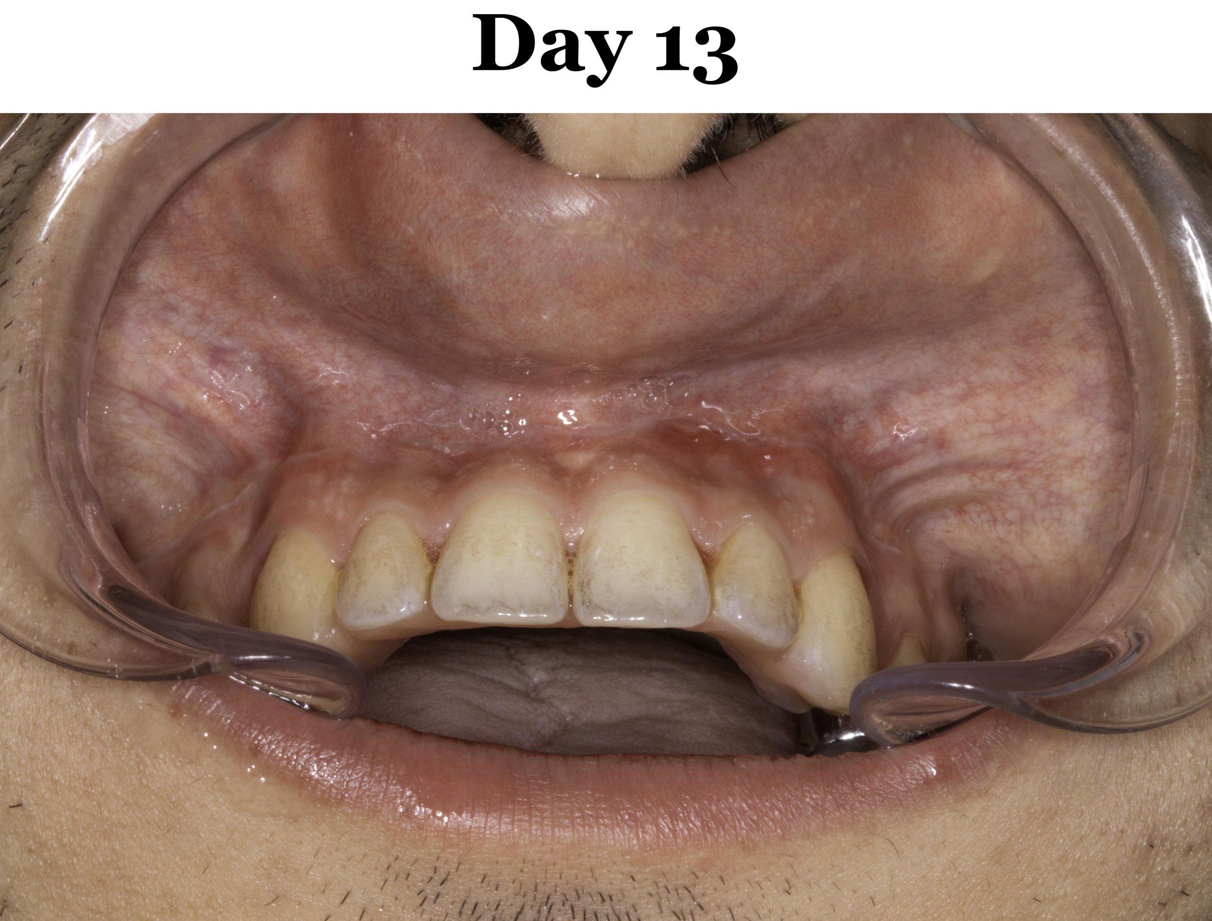 Lip Tie Release Day 13_Upper.jpg