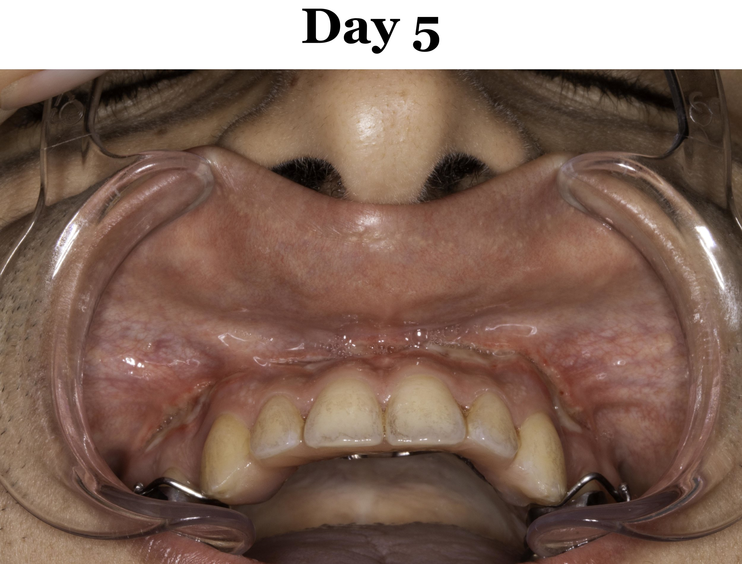 Lip Tie Release Day 5_Upper.jpg