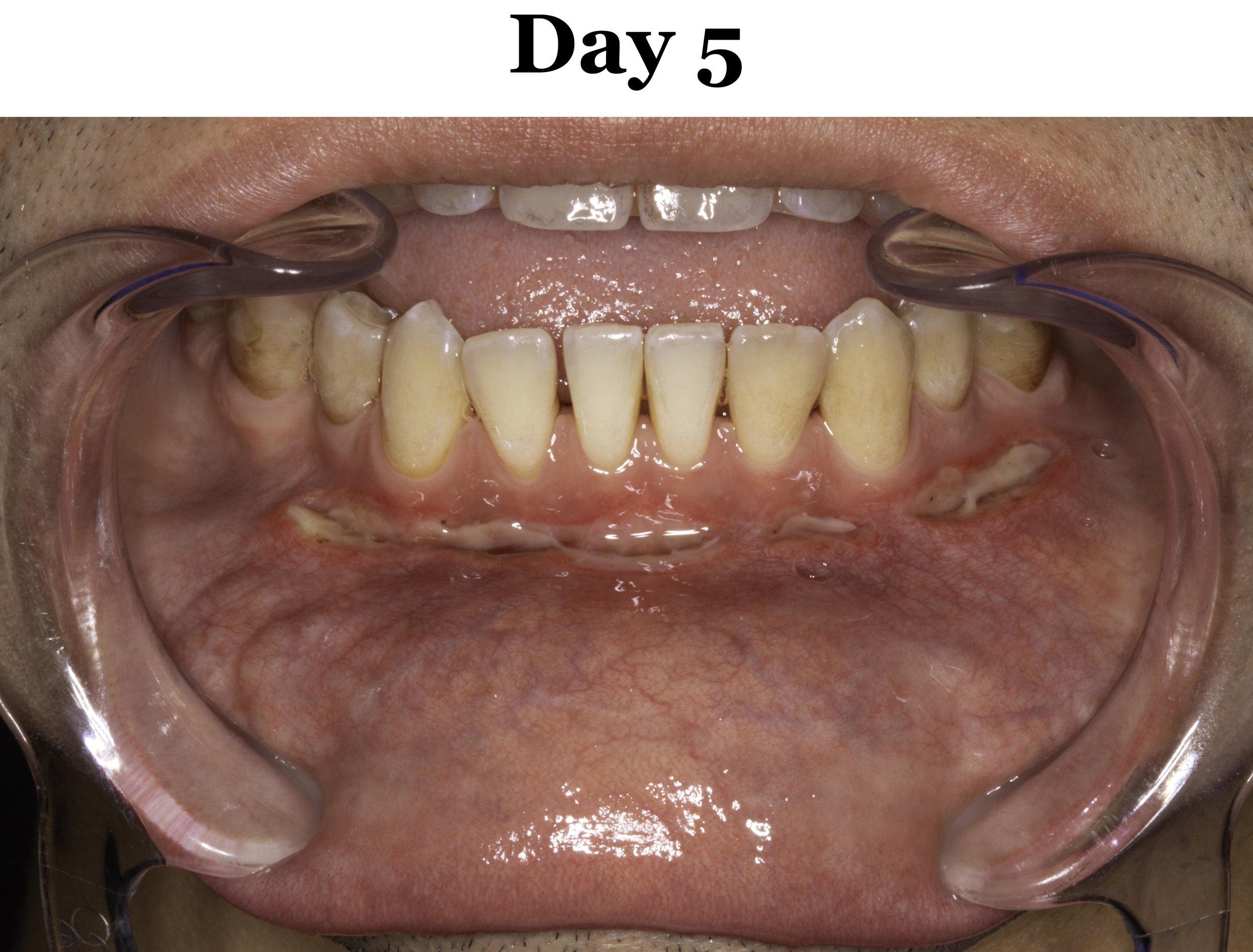 Lip Tie Release Day 5_Lower.jpg