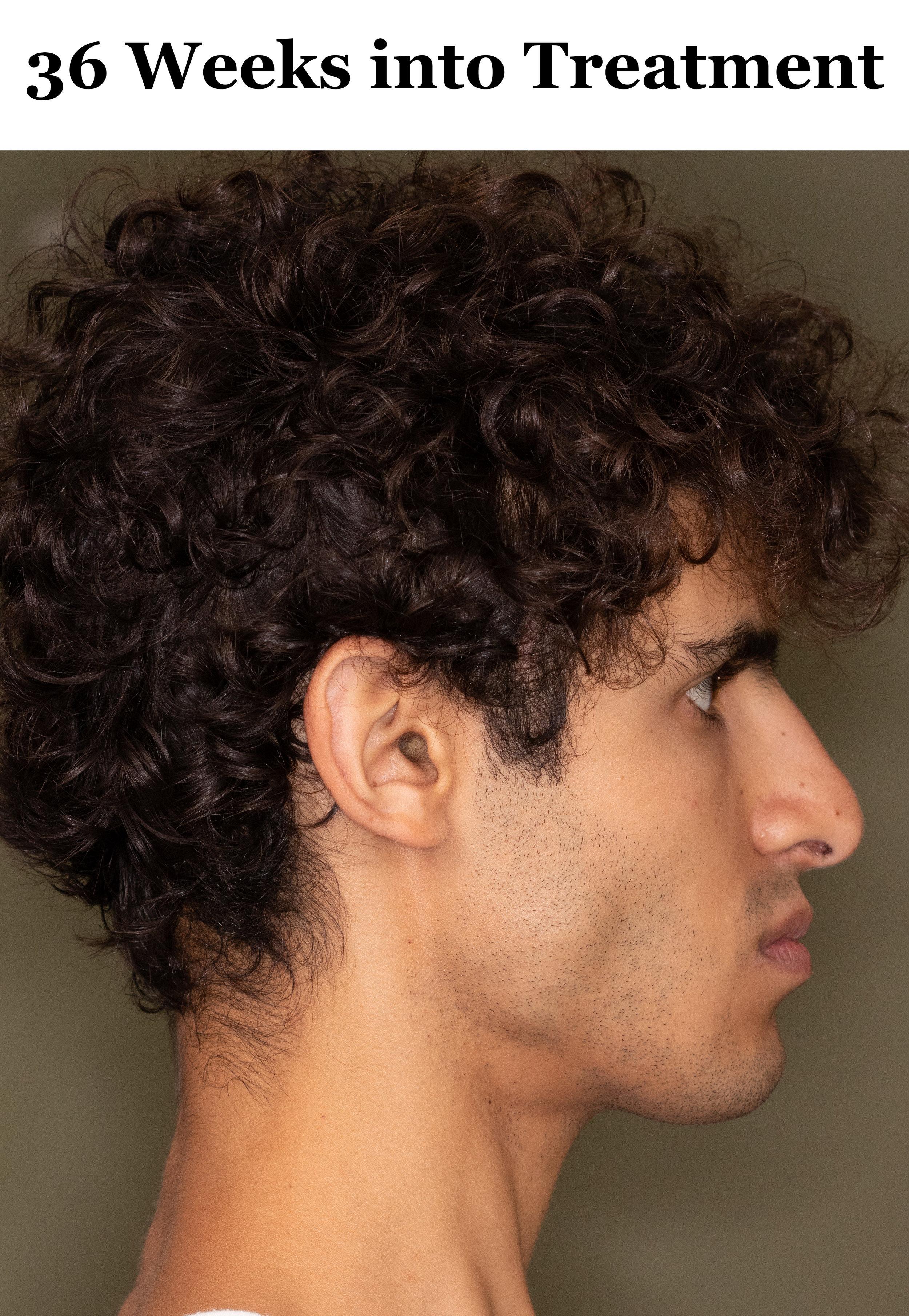 36 Weeks Side Profile.jpg