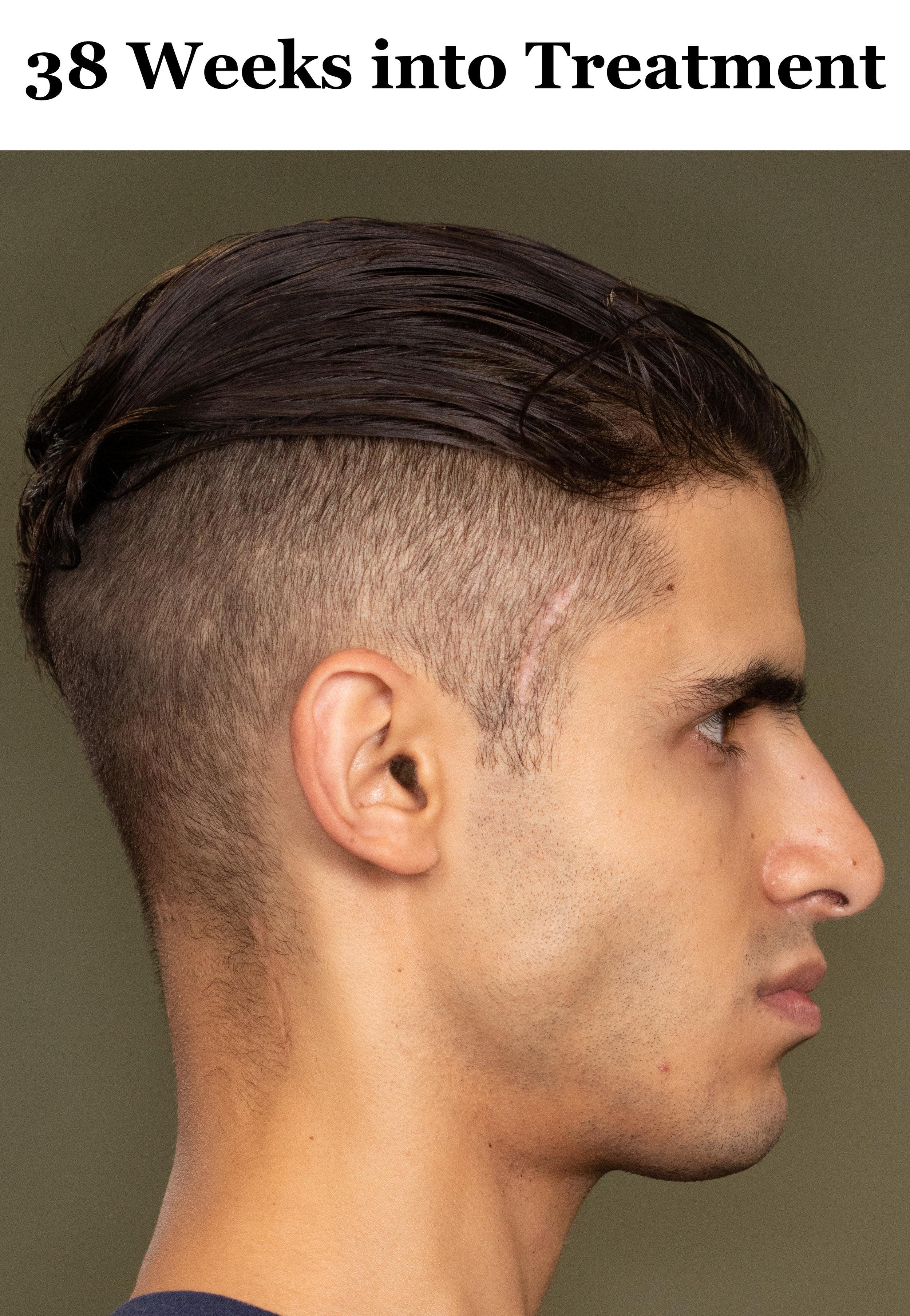 38 Weeks Side Profile.jpg