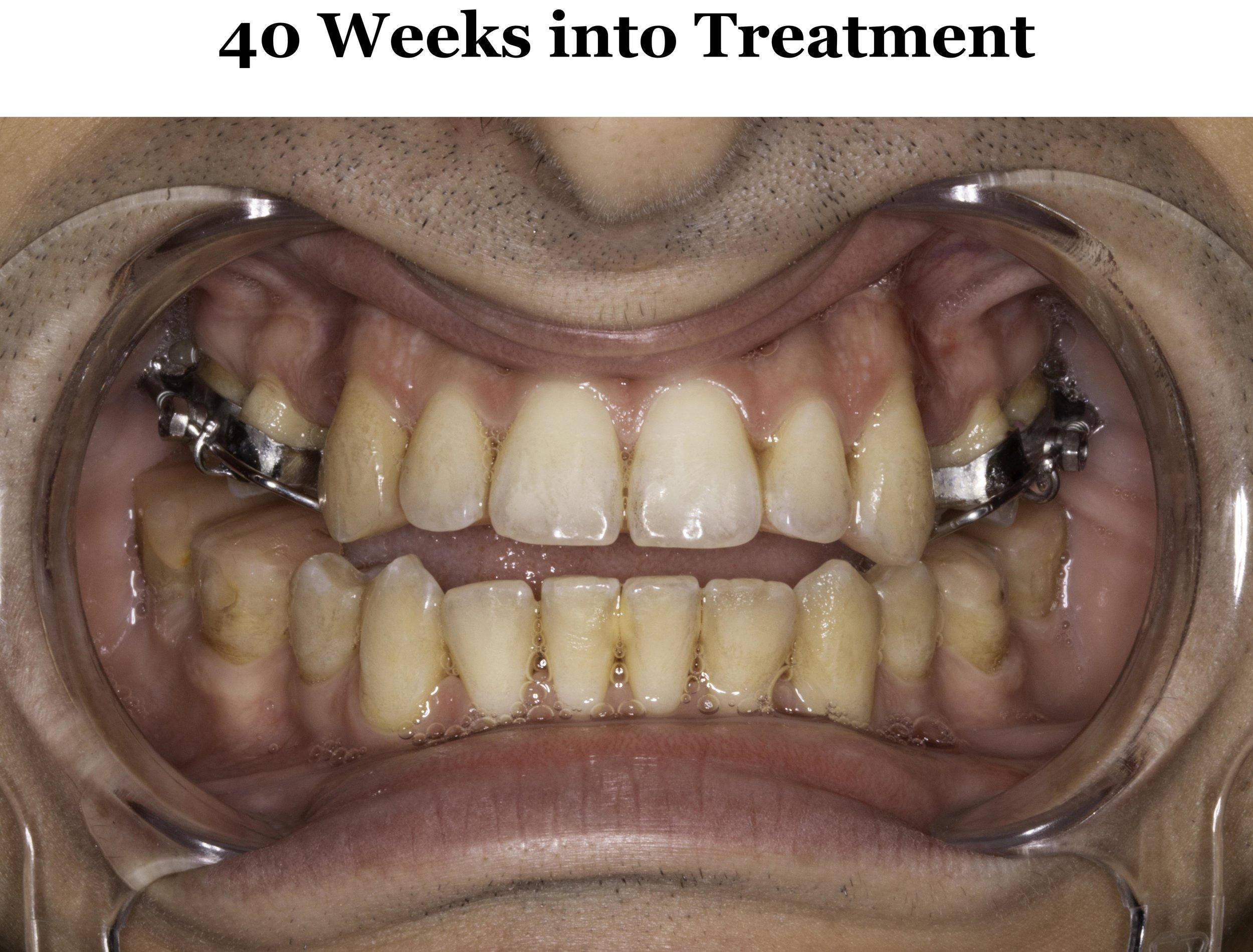 40 Weeks Occlusion.jpg