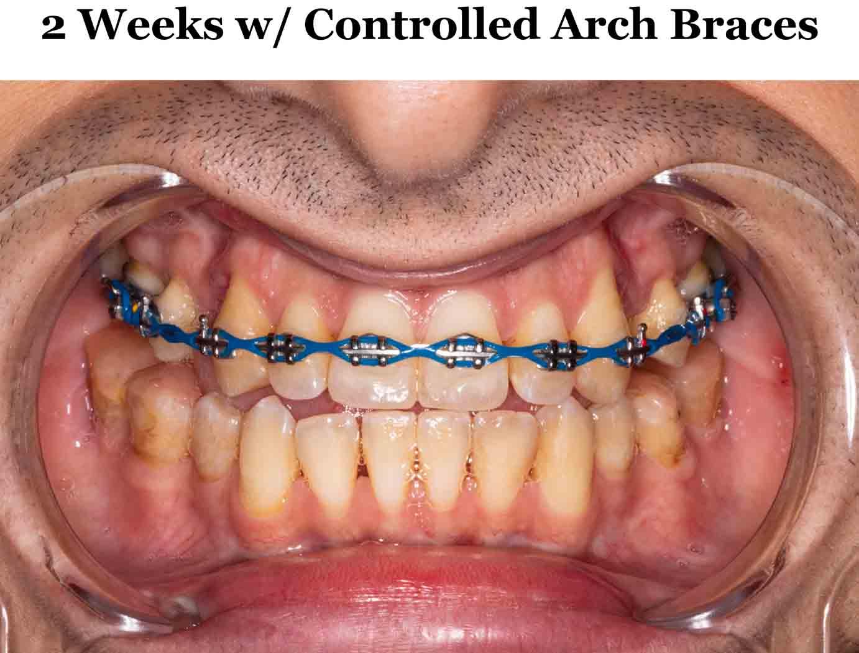 controlled arch braces agga fagga